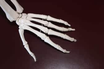 What Are the Difference Between Osteoarthritis and Rheumatoid Arthritis? 1